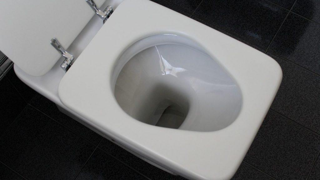 トイレ掃除のポイント~便座の裏の黄ばみはこう落とす!